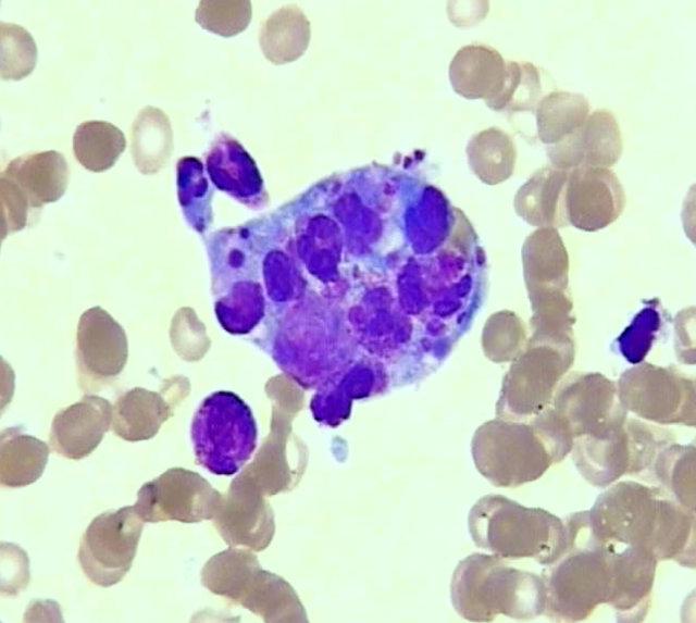 陆道培医院于国际学术期刊发布中国人群噬血细胞综合征遗传突变谱