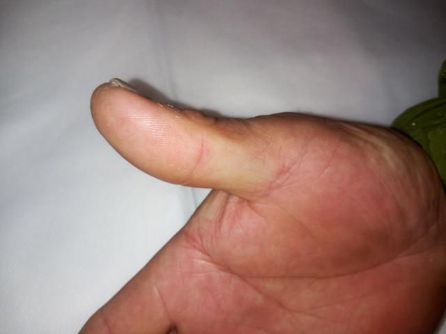 国际先进水平了解一下~生物膜包扎治疗指端创面技术!