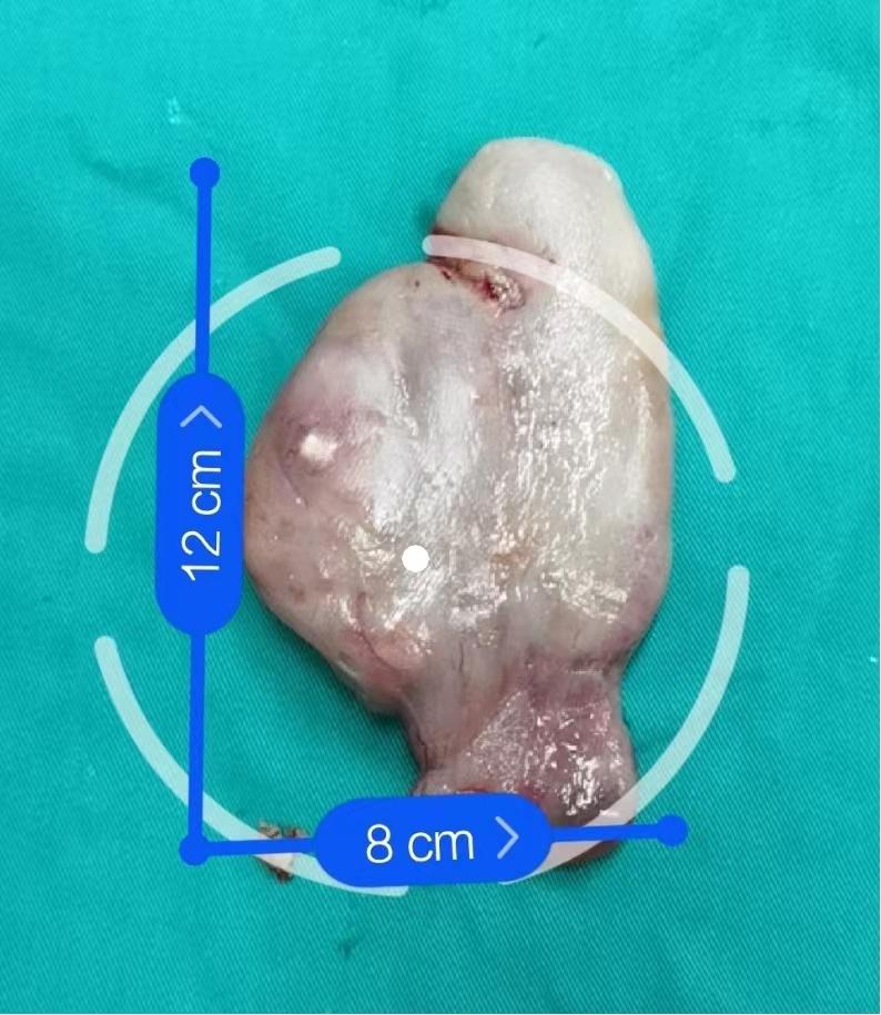 罕见巨大鼻息肉竟从鼻子卡入喉咙,武汉大学人民医院另辟蹊径帮助老人脱险