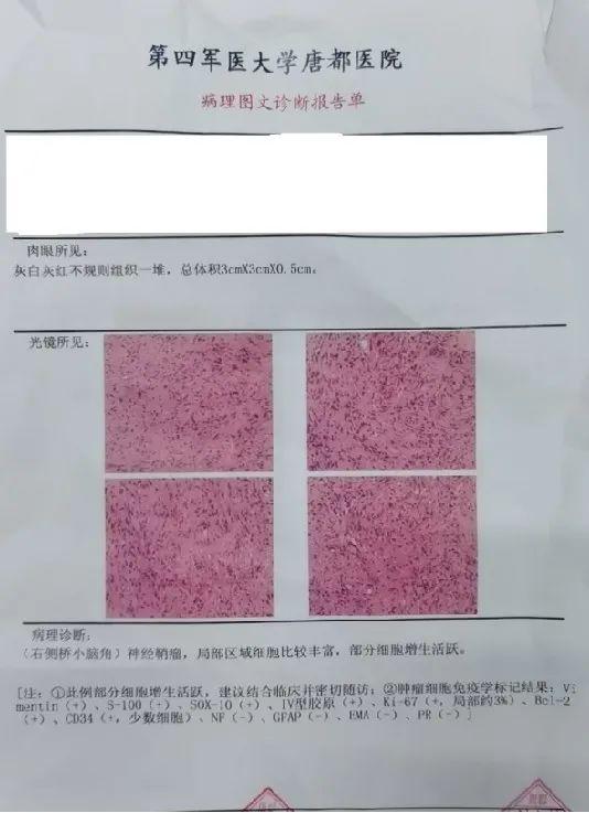 【高尚病例】不典型颅内神经鞘瘤