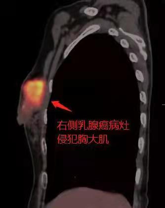 罹患乳腺癌,却因「肺功能」受损而无法手术?广州泰和肿瘤医院成功为患者「拆弹」